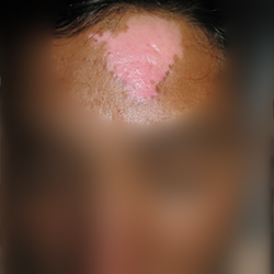 leucoderma /Skin loss