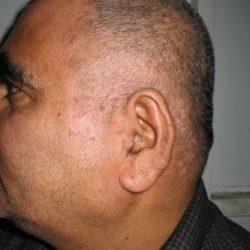 Hair Treatment in Pune
