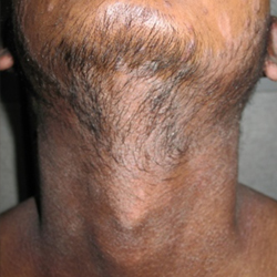 Skin disease treatment
