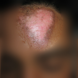leucoderma homeopathy treatment