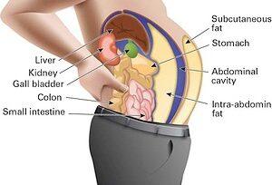 abdominal1