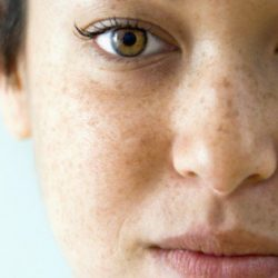 pigmentation - Dr. Shivaji Mali