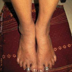 Leg disease treatment