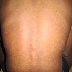 Skin disease treatment