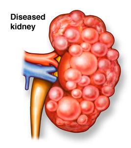 benign_kidney_diseases