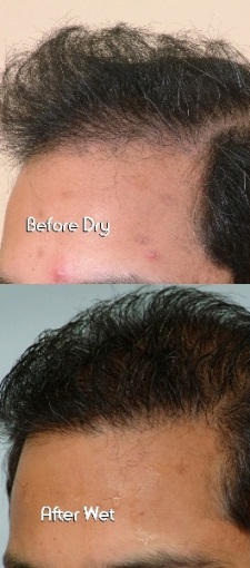 scalp treatment in hadapsar pune
